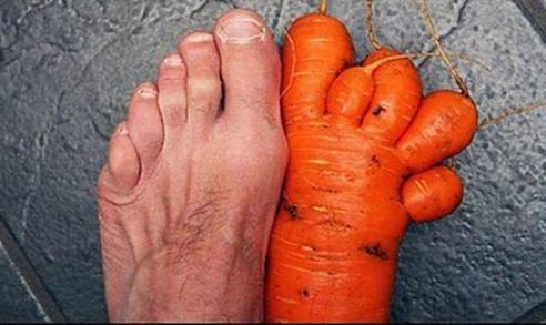 Adventist vegan rushed to hospital after carrot overdose